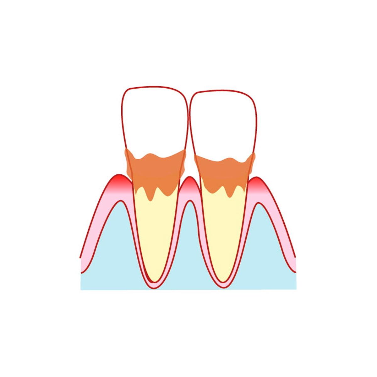 プラークが歯の組織を破壊する!!
