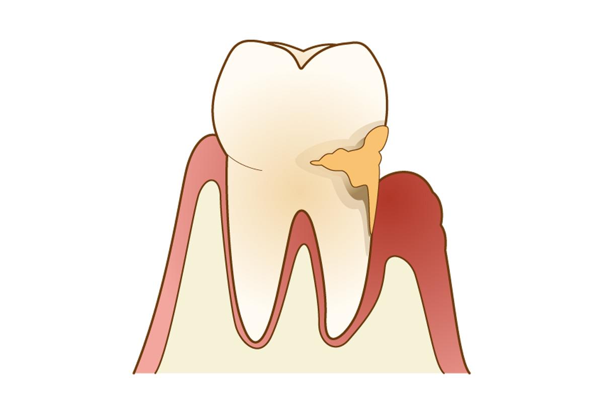 歯周病とはこんな病気です